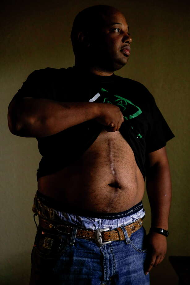 Reginald Rossow lifts his shirt to show his scars in his apartment Tuesday, June 13, 2017 in Clute. Rossow was shot through his apartment wall while he was sleeping by an off duty police officer who was living in the apartment next to his. Photo: Michael Ciaglo, Houston Chronicle / Michael Ciaglo
