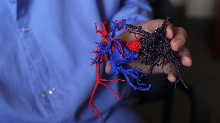 Doctors were given a 3-D model of Paisleigh (red and blue) and Paislyn's (purple) hearts to help them prepare for surgery. Photo: Photo Courtesy Of University Of Minnesota / handout