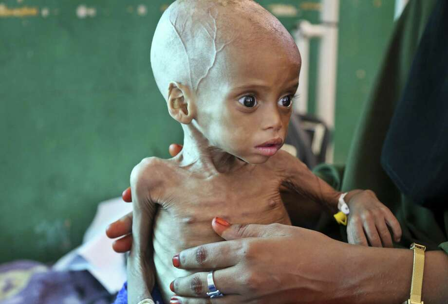 More More than 3 million Somalis — about one-fourth of the population — are in critical need of help. This malnourished child was being treated at the Banadir Hospital in Mogadishu. Photo: Mohamed Sheikh Nor /Associated Press / Copyright 2017 The Associated Press. All rights reserved.