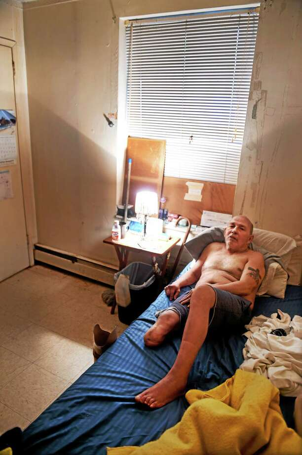 (Peter Hvizdak - New Haven Register) Julio Arroyo, an amputee, says that the wall by his bed leaks large amounts of water into his bedroom that sits on the ground floor of his Church Street South Apartment that he shares with his with Juanita and their granddaughter Friday August 21, 2015 . Photo: ©2015 Peter Hvizdak / ©2015 Peter Hvizdak