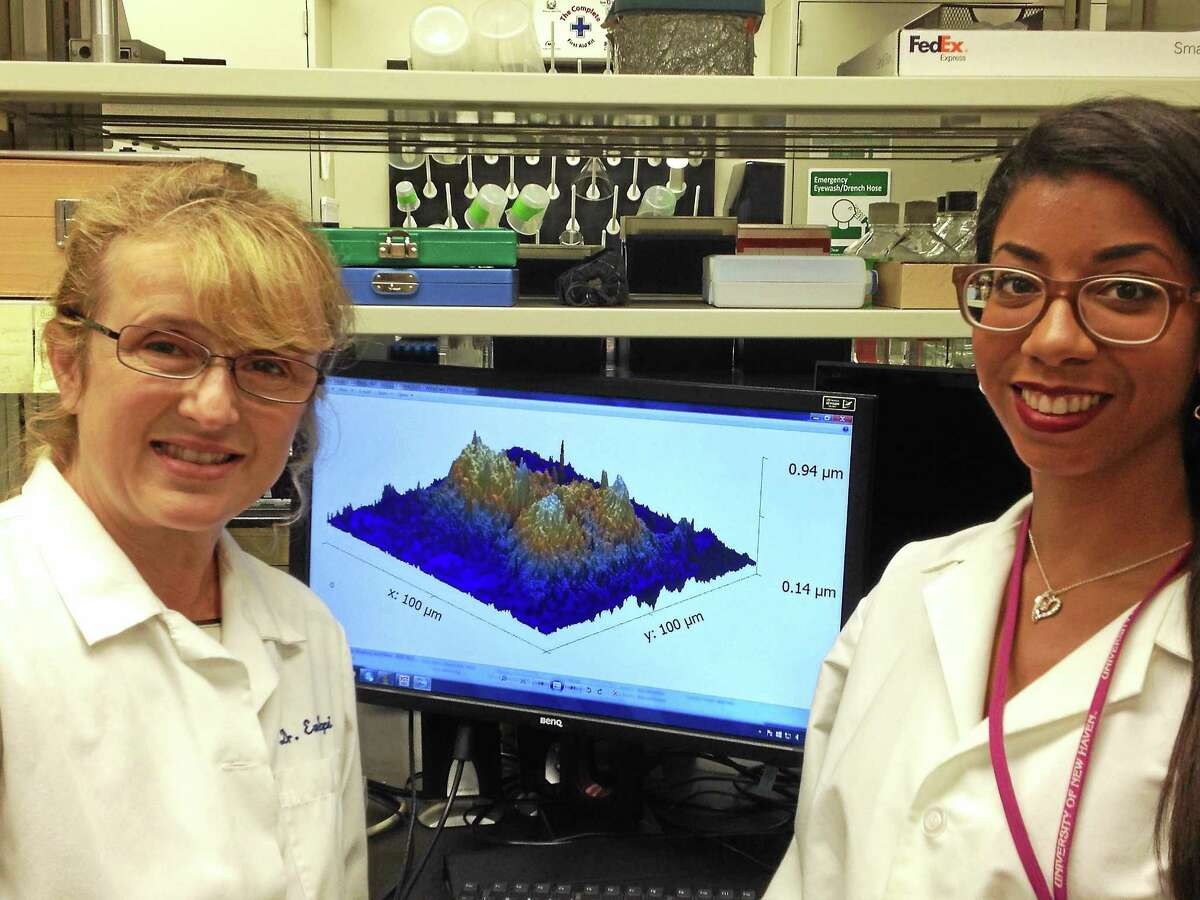 (Mark Zaretsky - New Haven Register) University of New Haven Associate Professor Eva Sapi, left, who heads UNH's Lyme disease program, and student researcher Kayla Socarron with a computer-enhanced, three-dimensional image of Lyme disease biofilm in a bacteria sample in their West Haven lab.