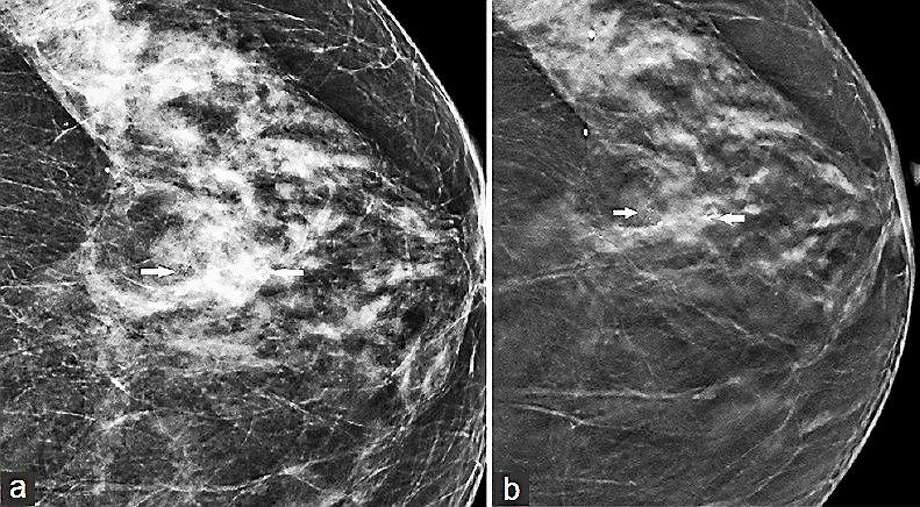 """Screenshot of breast imaging via <a href=""""http://www.clinicalimagingscience.org/article.asp%3Fissn%3D2156-7514%3Byear%3D2013%3Bvolume%3D3%3Bissue%3D1%3Bspage%3D65%3Bepage%3D65%3Baulast%3DDestounis"""">clinicalimagingscience.org</a> Photo: Journal Register Co."""