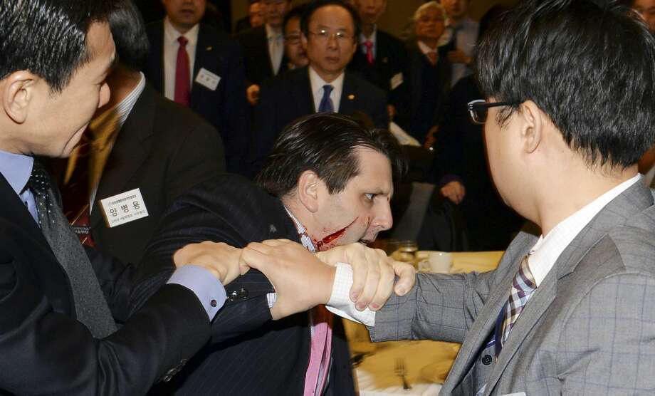 Injured U.S. Ambassador to South Korea Mark Lippert, center, is helped by other participants after he was attacked by a man at a lecture hall in Seoul, South Korea on March 5, 2015. Lippert was in stable condition after being slashed on the face and wrist by a man wielding a 10-inch knife. Photo: AP Photo/Munhwa Daily Newspaper, Chung Ha-chong   / Munhwa Daily Newspaper