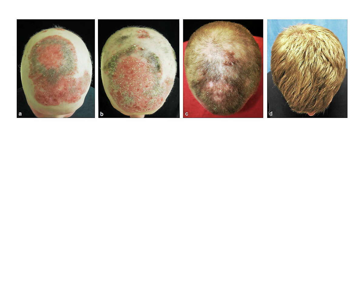Panel A: Before treatment; Panel B: 2 months into treatment ; Panel C: 5 months into treatment; Panel D: 8 months into treatment