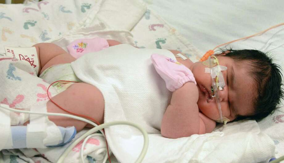 This image provided by Childrenís Hospital Colorado shows Mia Yasmin Garcia shortly after birth Dec. 2, 2014 she was born by cesarean section in Alamosa, Colorado Monday, weighing 13 pounds, 13 ounces. Photo: AP Photo/Childrenís Hospital Colorado, Tia Brayman   / Children's Hospital Colorado