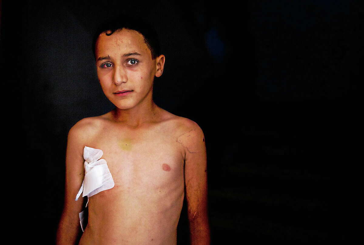 This photo made on Aug. 6, 2014 shows 10-year-old Abdul-Qader Sahweel, who was wounded at UNRWA school on July 30, 2014, and suffered shrapnel wounds to his chest and eye, standing in his home in Gaza City.