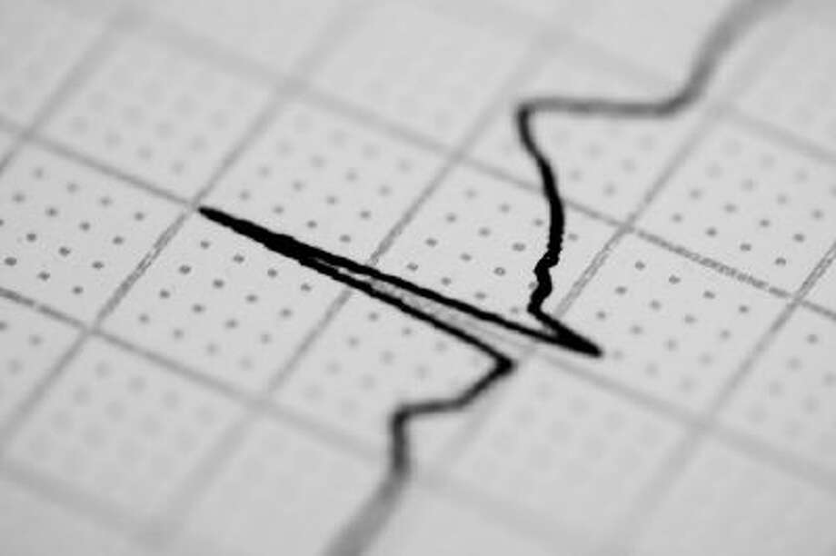 Electrocardiography Photo: Getty Images/Flickr RF / Flickr RF
