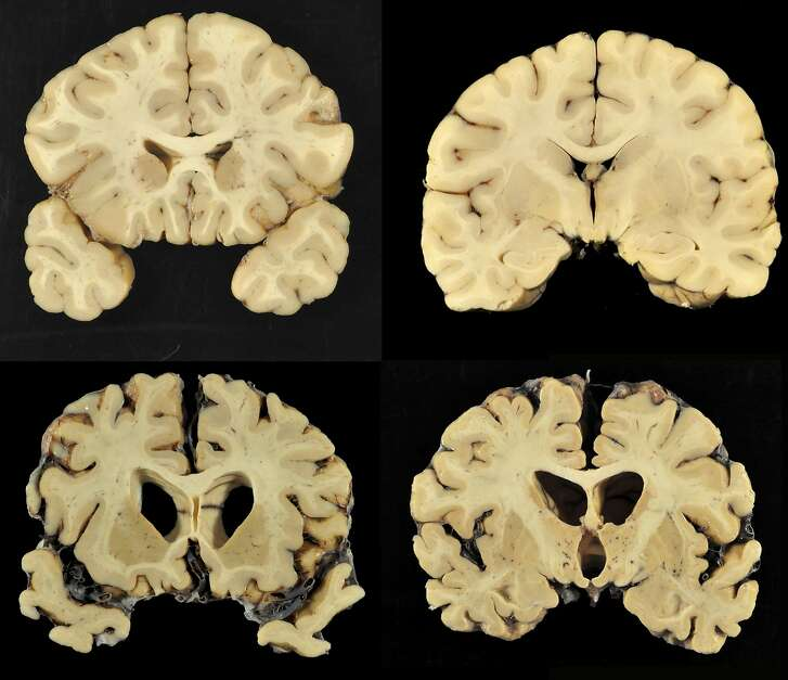 This combination of photos provided by Boston University shows sections from a normal brain, top, and from the brain of former University of Texas football player Greg Ploetz, bottom, in stage IV of chronic traumatic encephalopathy. According to a report released on Tuesday, July 25, 2017 by the Journal of the American Medical Association, research on the brains of 202 former football players has confirmed what many feared in life _ evidence of chronic traumatic encephalopathy, or CTE, a devastating disease in nearly all the samples, from athletes in the NFL, college and even high school. (Dr. Ann McKee/BU via AP)