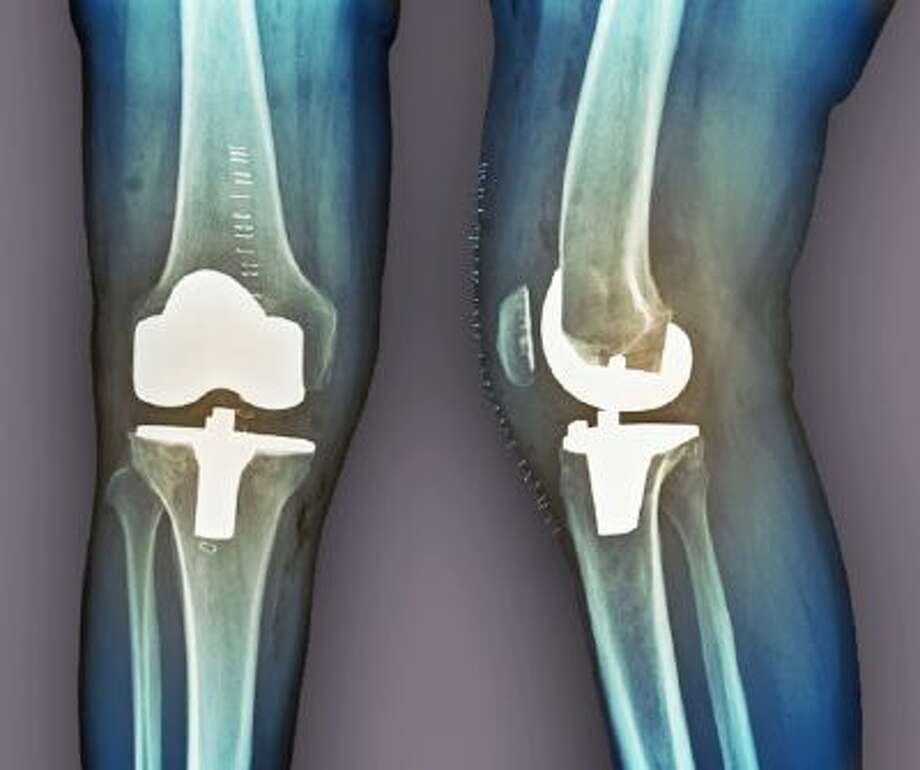 About 600,000 patients in the traditional Medicare program have their hips or knees replaced each year.