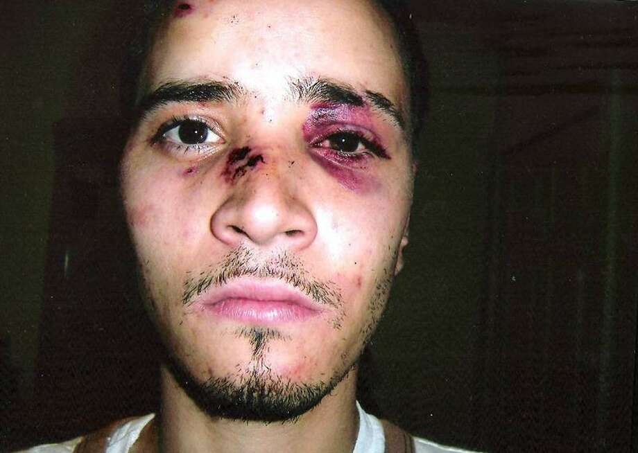 Gustavo Morales sued New Haven in 2011, claiming police punched him in the face while he was already handcuffed and offering no resistance. The lawsuit claimsÊMorales lost consciousness during the alleged beating.