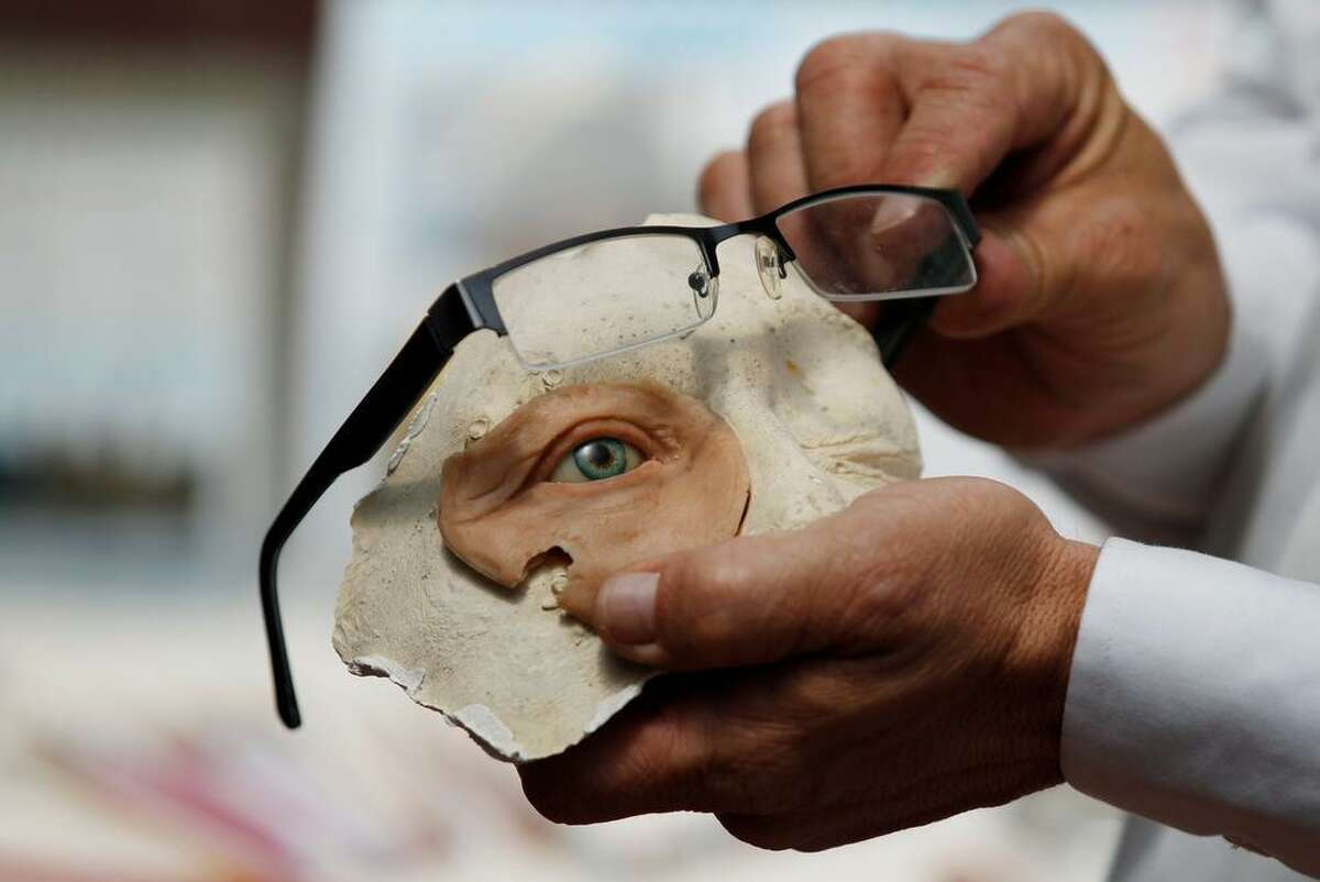 In this Feb. 5, 2013 photo, Anaplastologist Hernan Baron displays a prosthetic eye at his studio in Bogota, Colombia. Baron has been making silicone prosthetic body parts for over 15 years for patients with disfigurements and specializes in the reconstruction of ears, noses, eyes and hands. (AP Photo/Fernando Vergara)