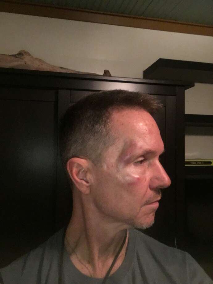 Heights-area resident Dr. Steve Milner said he was viciously assaulted by a man riding a bicycle on July 19. Photo: Steve Milner