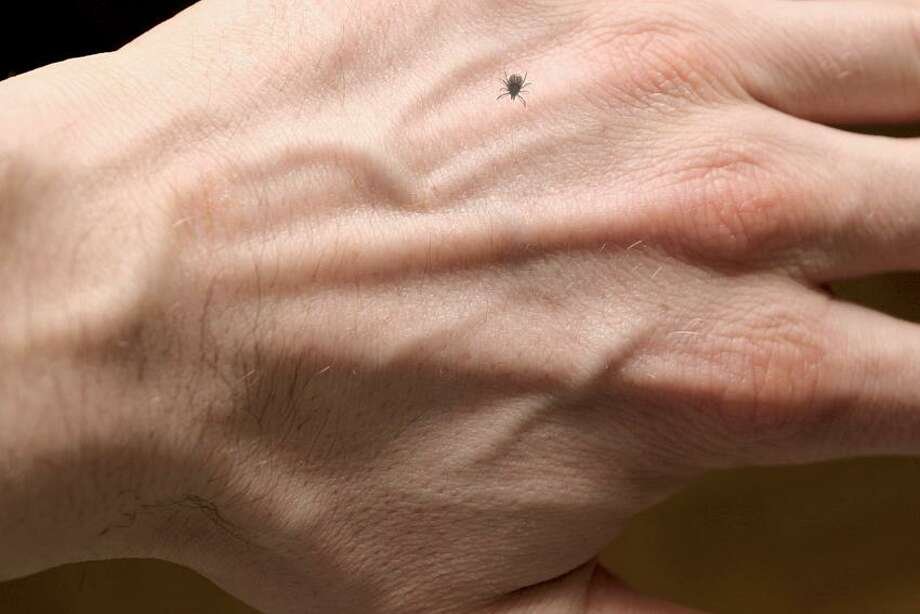 Ixodes ricinus on hand. Photo: Getty Images/iStockphoto / iStockphoto