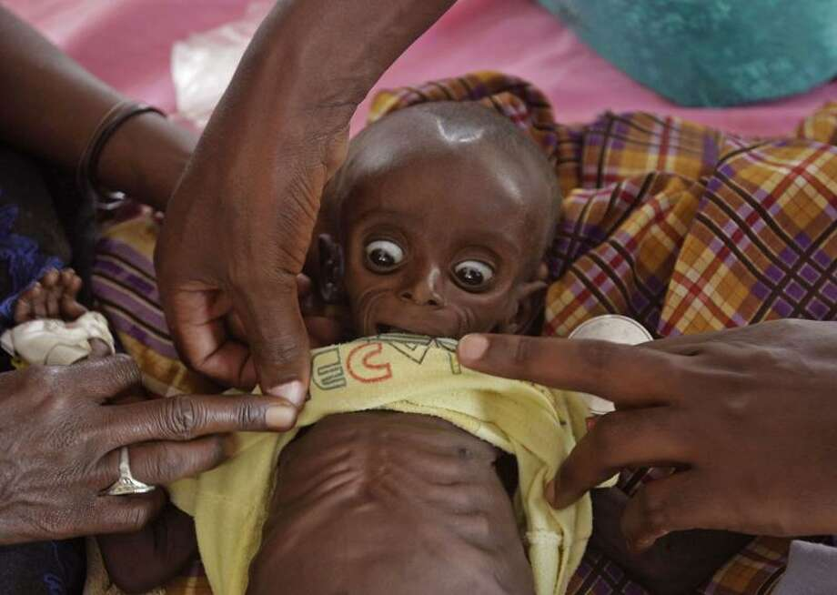 A doctor examines Mihag Gedi Farah, a 7-month-old Somali child with a weight of 7½ pounds, in a field hospital of the International Rescue Committee in the refugee town of Dadaab, Kenya, Tuesday. Associated Press Photo: AP / AP