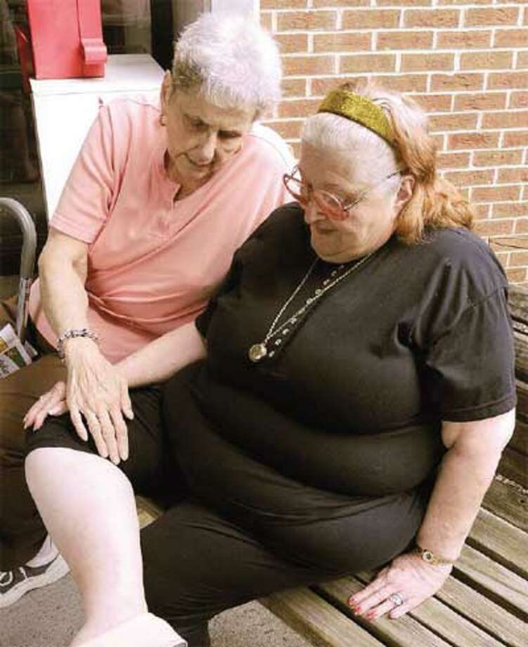 Linda Terani, left, a neighbor of Marion Sullivan, looks at the bedbug bites Sullivan received because of an infestion in her apartment in the Davenport-Dunbar Residences senior housing complex in Hamden Thursday. (Peter Hvizdak/Register)
