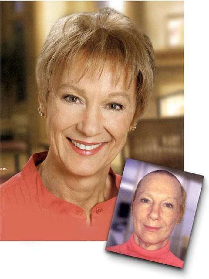 This before-and-after photo, from a Hair Club brochure geared specifically to women, shows the effects the club had on a 64-year-old client identified as Mary. (Courtesy of Hair Club)