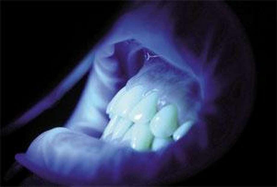 Comfortable Dental Care's De Stronie demonstrates a teeth-whitening procedure that uses UV light. (Brad Horrigan)