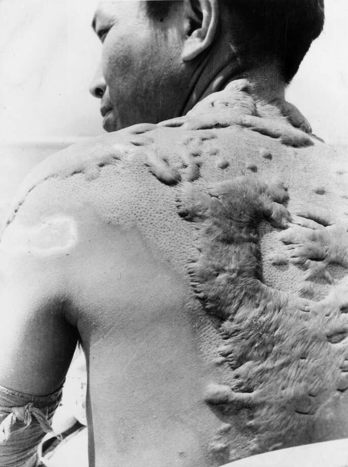 A victim of the atomic bombing of Hiroshima.   (Photo by Keystone/Getty Images) Photo: Keystone/Getty Images