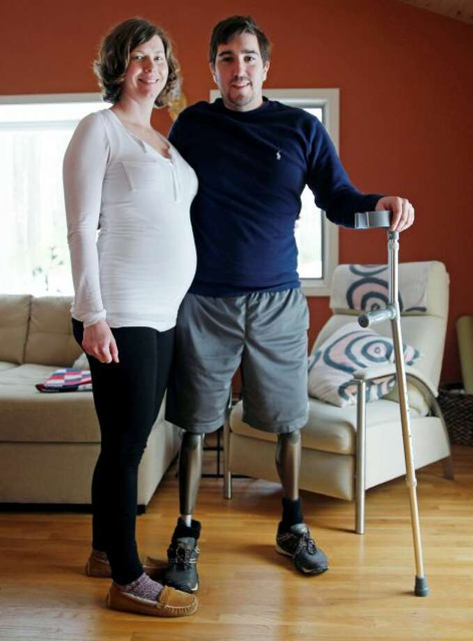 Jeff Bauman, who lost both legs in the Boston Marathon bombings, then helped authorities identify the suspects, poses with his expectant fiancé, Erin Hurley, their home in Carlisle, Mass., Friday, March 14, 2014. According to Bauman, the baby is due July 14. They don't know if it's a boy or a girl, and they want it to be a surprise. The two were engaged in February. (AP Photo/Charles Krupa) Photo: AP / AP