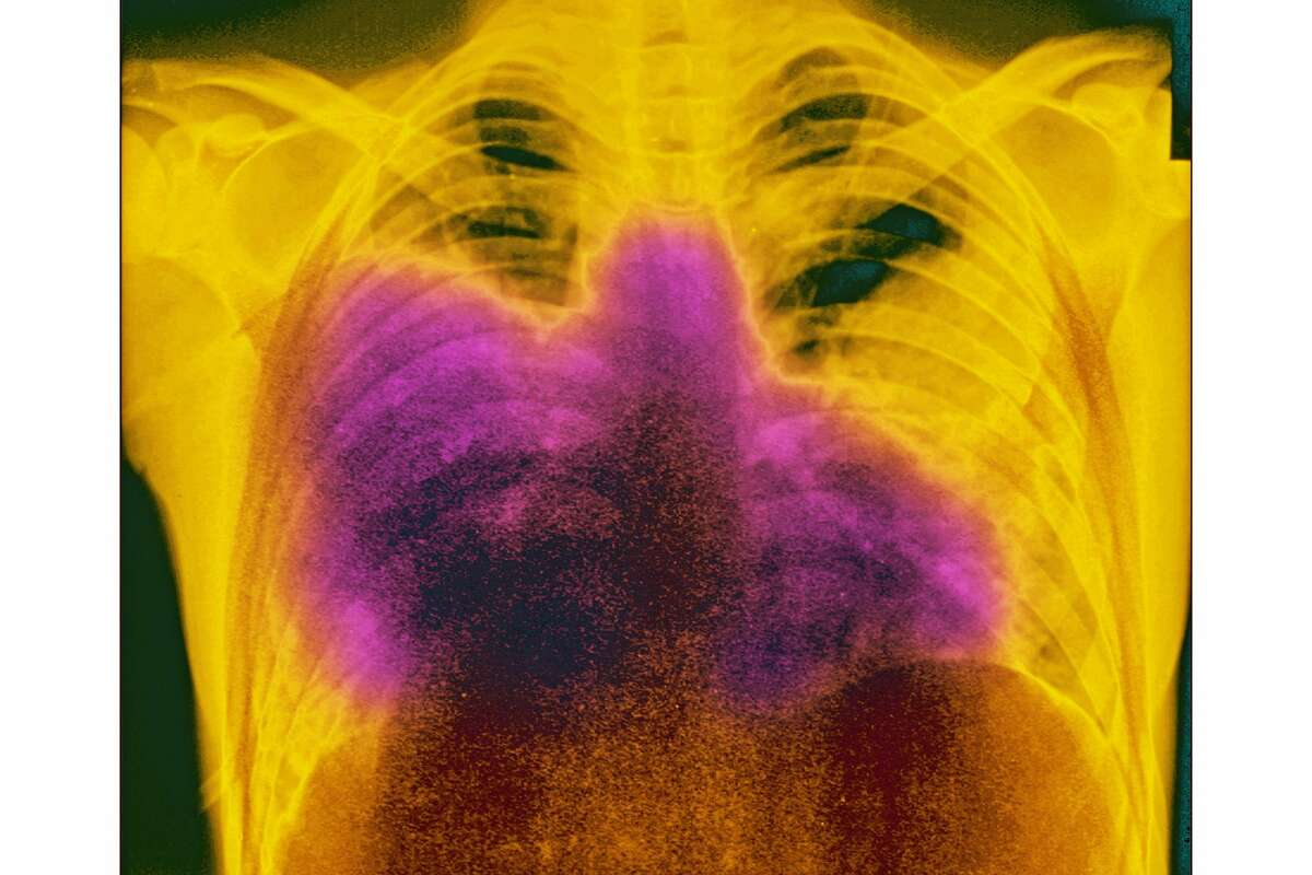 Acute bilateral pneumonia, otherwise known as Legionnaire's?• disease, which is caused by Legionella pneumophila, is seen on a frontal chest x-ray.