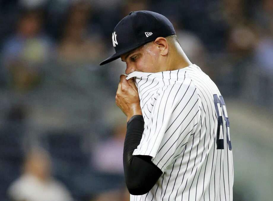 Yankees relief pitcher Dellin Betances wipes his face on his jersey while leaving the mound after allowing two runs in the seventh inning Thursday. Photo: Kathy Willens — The Associated Press  / Copyright 2017 The Associated Press. All rights reserved.