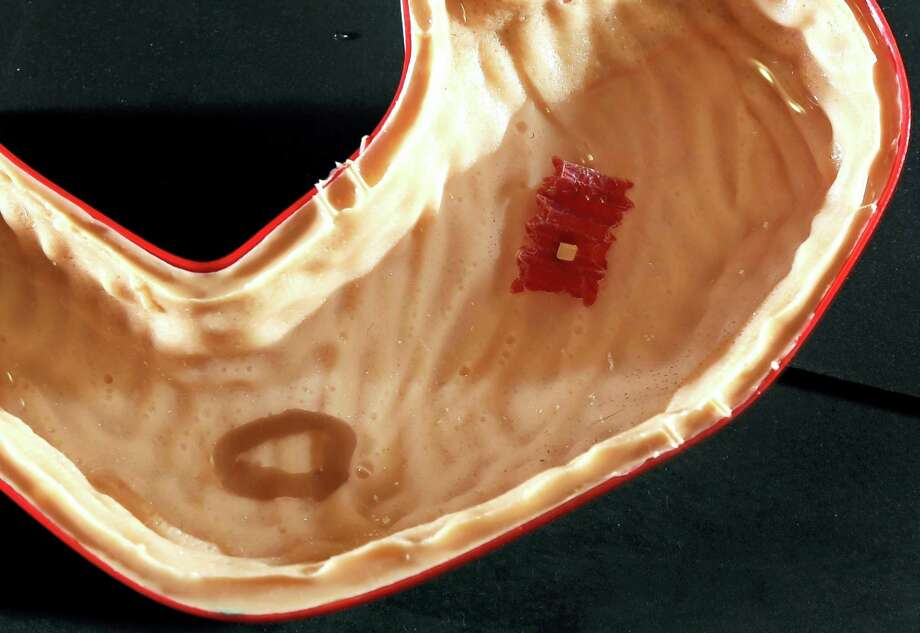 "In this July 13, 2016 photo, a tiny ""origami robot"" floats, at right, towards a ""wound"" in a stomach model at the Massachusetts Institute of Technology in Cambridge, Mass. Steven Guitron, a mechanical engineering masters student, and others at MIT have developed these tiny ingestible robots which are ""folded up"" — hence the name — and swallowed in order to complete certain tasks within the body. So far they can be used to patch wounds, remove foreign objects, and even deliver medicine within the body. The robots unfold when ingested, and can be controlled by magnet forces outside of the body. Photo: AP Photo/Elise Amendola  / AP"
