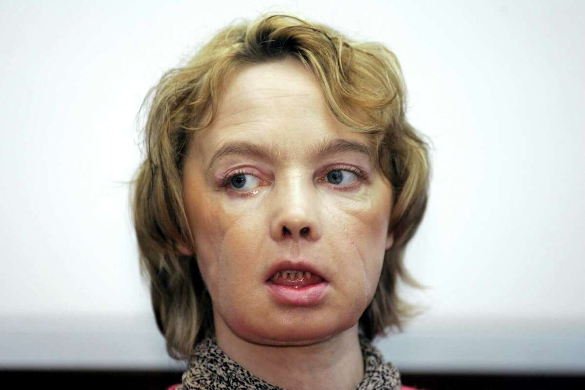 In this Feb. 6, 2006, file photo, Isabelle Dinoire, the woman who received the world's first partial face transplant with a new nose, chin and mouth, in an operation on Nov. 27, 2005, addresses reporters during her first press conference since the transplant at the Amiens hospital, northern France. The 38-year-old woman was mauled by a dog, leaving her with severe facial injuries that her doctors said made it difficult for her to speak and eat. Dinoire who received the world's first partial face transplant has died, 11 years after surgery that set the stage for dozens of other transplants around the world.