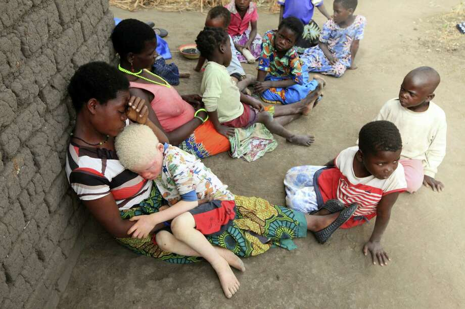 """In this Tuesday, May 24, 2016, photo, Edna Cedrick, 26, left, holds her surviving albino son after his twin brother who had albinism was snatched from her arms in a violent struggle in Machinga, about 200 kilometres north east of Blantyre Malawi. Cedrick says she is haunted daily by images of the decapitated head of her 9 year old son. At least 18 albino people have been killed in Malawi in a """"steep upsurge in killings"""" since November 2014, and five others have been abducted and remain missing, a new Amnesty International report released Tuesday says. Photo: AP Photo/Tsvangirayi Mukwazhi   / Copyright 2016 The Associated Press. All rights reserved. This material may not be published, broadcast, rewritten or redistribu"""