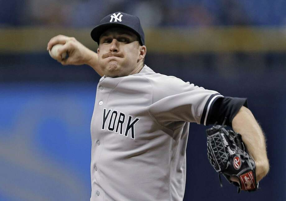 New York Yankees starter Chase Whitley has been placed on the DL. Photo: Chris O'Meara — The Associated Press  / AP