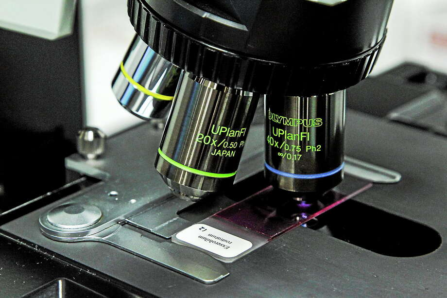 A closeup view of a microscope taking a look at a slide with meningitis causing fungus Exserohilum rostratum at the Mycotic lab at the Centers for Disease Control and Prevention in Atlanta. Photo: AP Photo/Pouya Dianat, File  / AP2012