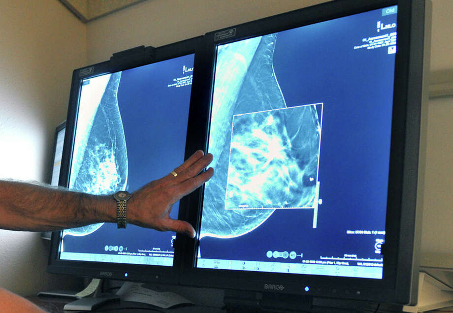 In this July 31, 2012 photo, a radiologist compares an image from earlier, 2-D technology mammogram to the new 3-D Digital Breast Tomosynthesis mammography in Wichita Falls, Texas. The technology can detect much smaller cancers earlier. In guidelines published Oct. 20, 2015, the American Cancer Society revised its advice on who should get mammograms and when, recommending every other year for women starting at age 55. Photo: Torin Halsey/Times Record News Via AP  / Wichita Falls Times Record News