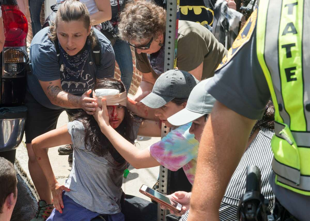 People receive first-aid after James Alex Fields Jr. allegedly rammed his car into a crowd killing 32-year-old Heather Heyer in Charlottesville, VA on August 12, 2017.