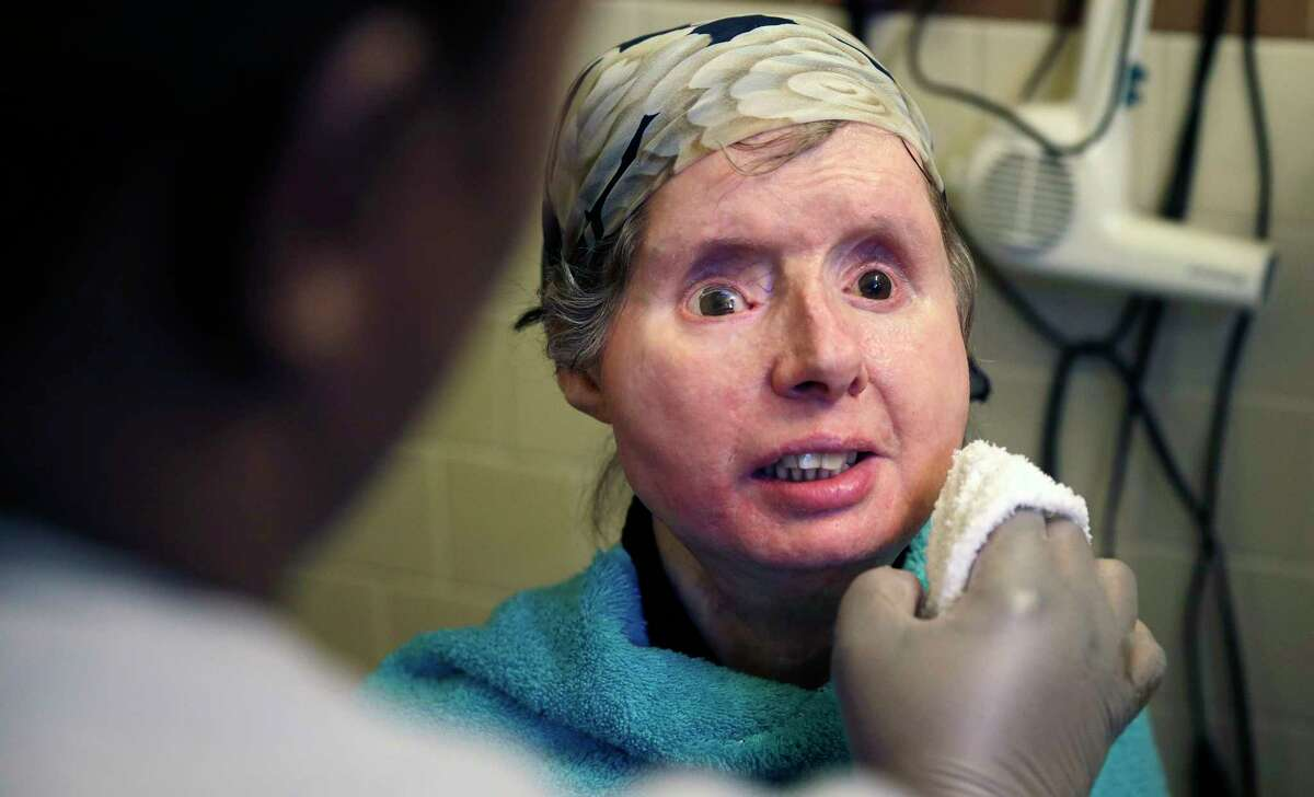 Charla Nash smiles Feb. 20 as her care worker washes her face at her apartment in Boston. The Department of Defense is following Nash's progress, after funding her transplant surgery in 2011. Nash lost her face, eyes and hands after being mauled by a chimpanzee in 2009.