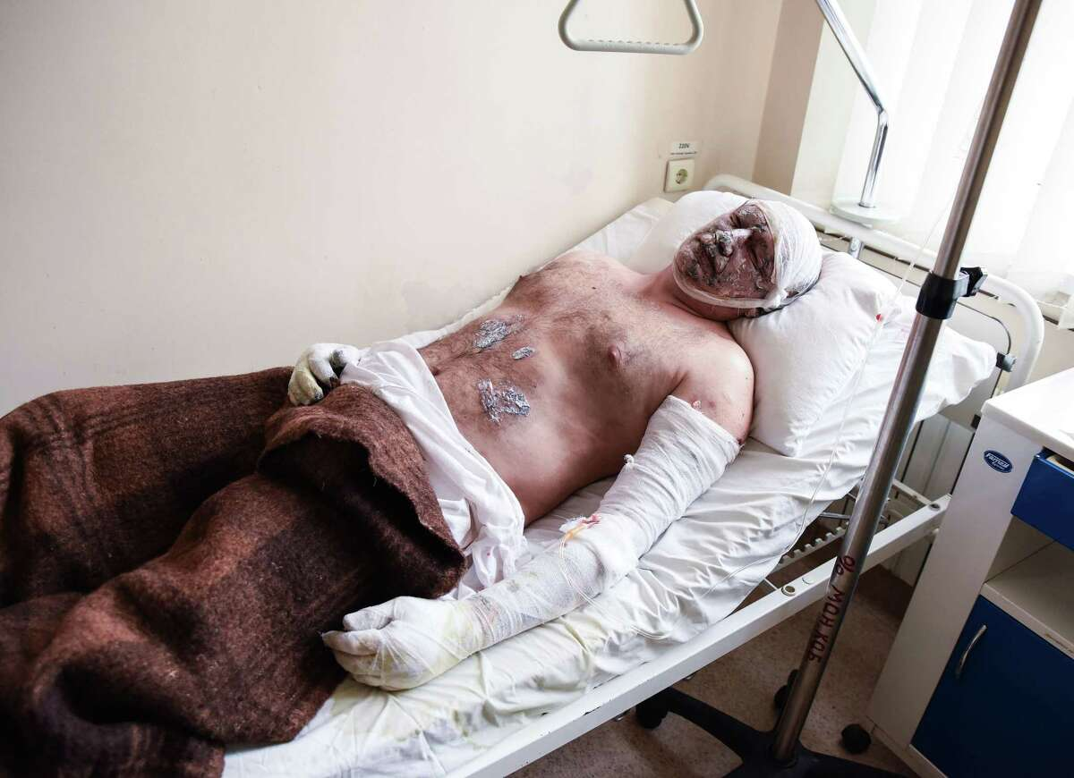 Igor Muryginn, a 42-year-old injured miner from the Zasyadko mine lies in a hospital in Donetsk, Ukraine, Wednesday, March 4, 2015. An explosion ripped through a coal mine before dawn Wednesday in war-torn eastern Ukraine, killing at least one miner and trapping more than 30 others underground, rebel and government officials said. One injured miner reported seeing five bodies.(AP Photo/Mstyslav Chernov)