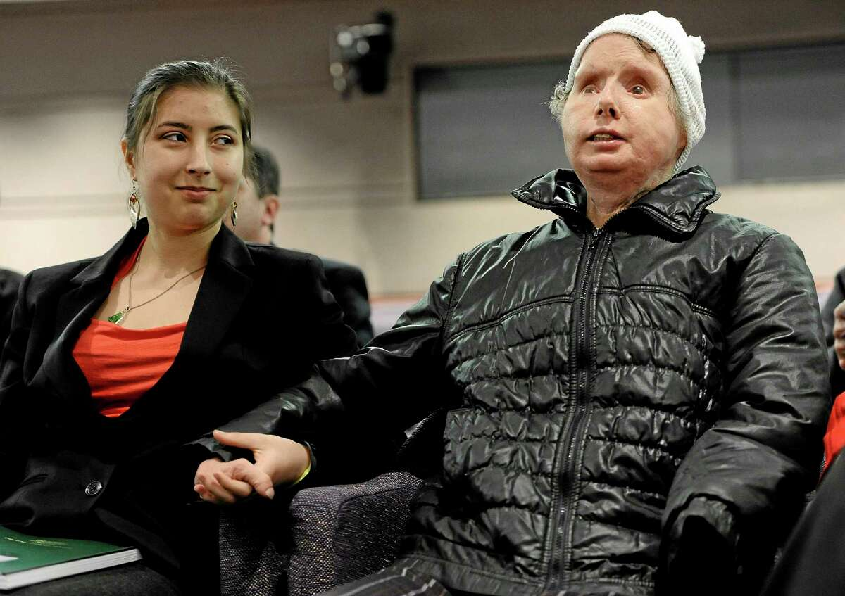 Briana Nash, left, looks at her mother, Charla Nash after she finished speaking to Connecticut legislators at a public hearing at the Legislative Office Building, Friday, March 21, 2014, in Hartford, Conn.
