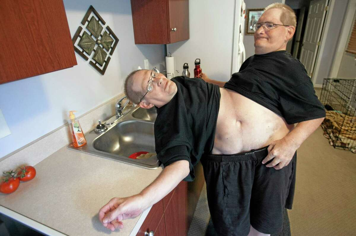 Donnie, left, and Ronnie Galyon, 62, walk to get water inside their Beavercreek, Ohio, home Saturday, June 28, 2014.The brothers, born Oct. 28, 1951, are hoping to be recognized later this year as the world's oldest conjoined twins. That could happen in October, when they would turn 63 and pass the record held by conjoined twins from Italy. (AP Photo/The Grand Rapids Press, Cory Morse) ALL LOCAL TELEVISION OUT; LOCAL TELEVISION INTERNET OUT