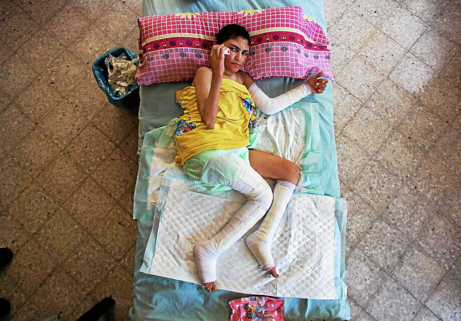 In this photo made on Aug. 7, 2014, disabled Sally Saqr, 20, who was wounded on July 12, 2014, in Beit Lahiya during Israeli shelling of a care center for the handicapped, lies on a mattress at her family home in Gaza City. Photo: AP Photo/Dusan Vranic  / AP