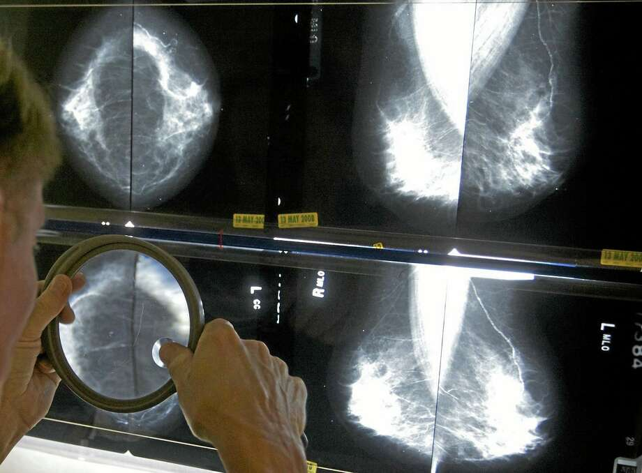 FILE A radiologist uses a magnifying glass to check mammograms for breast cancer. While Connecticut's mortality rate for breast cancer is the 14th lowest in the nation, Middlesex County women have the highest incidence of the disease. Photo: AP / AP