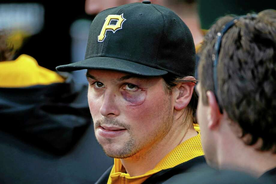 Pirates outfielder Travis Snider sits in the dugout before Monday's game against the Cincinnati Reds in Pittsburgh. Snider is sporting the cut and bruise on his face from a punch from the Milwaukee Brewers' Martin Maldonado during Sunday's brawl. Photo: Gene J. Puskar — The Associated Press  / AP