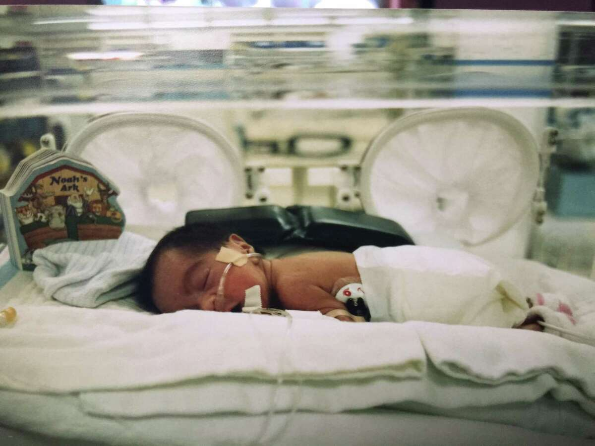 2. Her dad tears up every time he watches his daughter on TV. Ally went from being a 1-pound, 14-ounce preemie in an incubator (pictured) to awards-winning superstar.