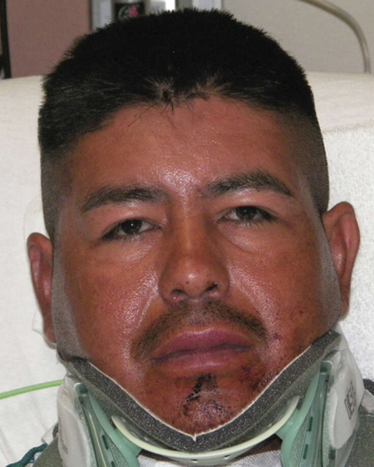 Gerardo Lopez, 39 was booked into the Bexar County Jail remotely from San Antonio Military Medical Center, where he's recovering from the alleged attack. He faces a $75,000 bond. Photo: Bexar County Jail