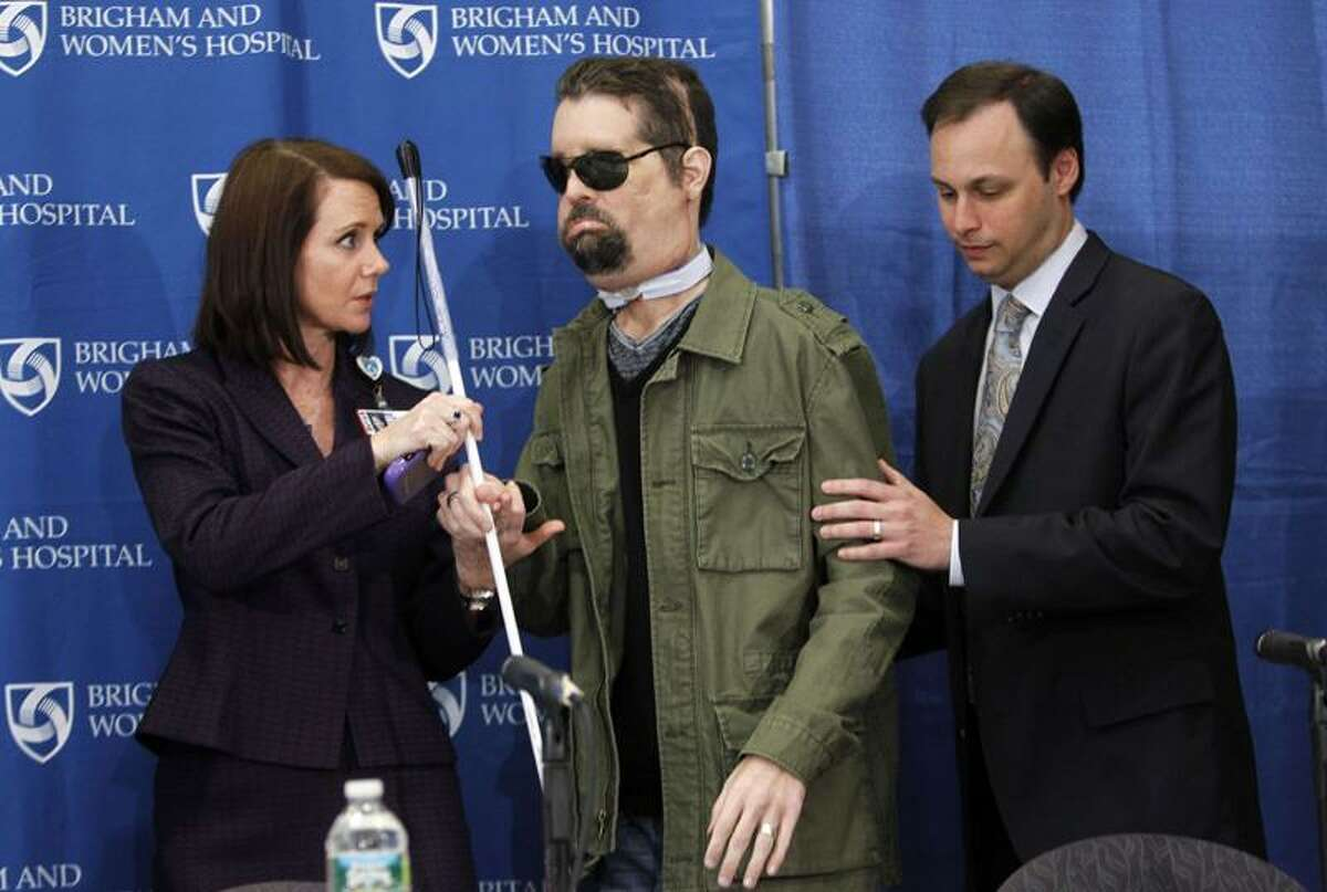Face transplant recipient Dallas Wiens, of Fort Worth, Texas, center, is assisted to his seat by Brigham and Women's Hospital spokesperson Erin McDonough, left, and Dr. Jeffrey Janis before the start of a news conference. Associated Press