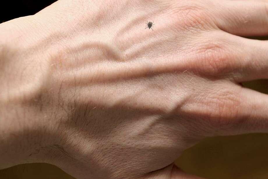 Ixodes ricinus on hand. Photo: Getty Images/iStockphoto / iStockphoto