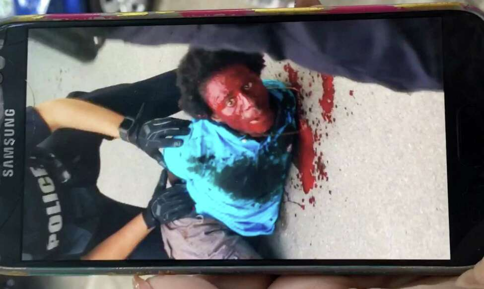 Frame grab from cellphone video footage of Dahmeek McDonald, 22, after he was shot by Troy police after being stopped by officers because he was wanted for a parole violation on Tuesday, Aug. 15, 2017, in Troy, N.Y. (Courtesy Brittany Hughes)