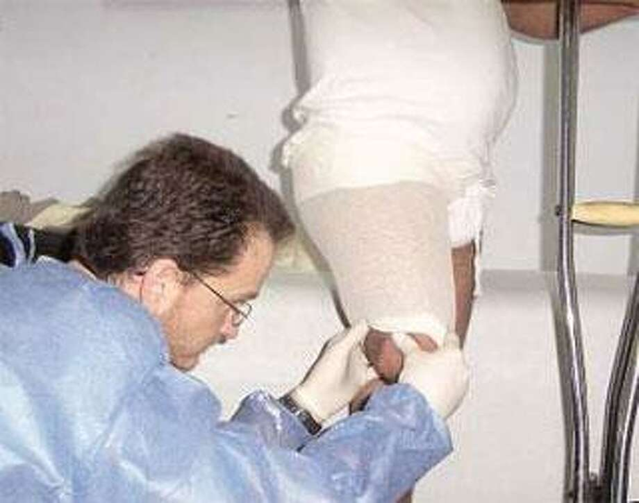 No stranger to earthquake relief, Paul Macy of New England Orthotic and Prosthetic Systems molds a man's leg in Pakistan for an above-knee prosthesis in 2006. (Contributed photo)