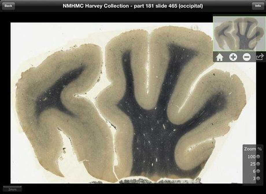 This digitized image made from a screen shot of a new iPad app, provided by the National Museum of Health and Medicine, Chicago, shows a cross-section of brain tissue from renowned theoretical physicist Albert Einstein. The new application to be released Tuesday will allow users to see Einstein's brain as if they were looking through a microscope. The application promises to make detailed images of his brain more accessible to scientists than ever before. Teachers, students and anyone who's curious also can get a look.  (AP Photo/Courtesy the National Museum of Health and Medicine Chicago) Photo: AP / Natinal Museum of Health and Medicine Chicago
