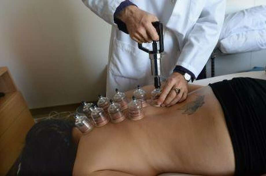 """Adam Atman <a href=""""http://L.Ac"""">L.Ac</a>. MMQ. attaches suction cups to the back of Alexsandra Marianetti, of Campbell, who is being treated for a cold and allergies at Los Gatos Acupuncture and Qigong Center in Los Gatos, Calif. on Thursday, May 9, 2013. Cupping is a Chinese medicine technique that's been around for thousands of years. The cups attach by vacuum to draw out toxins. (Dan Honda/Bay Area News Group) Photo: Bay Area News Group / Bay Area News Group"""