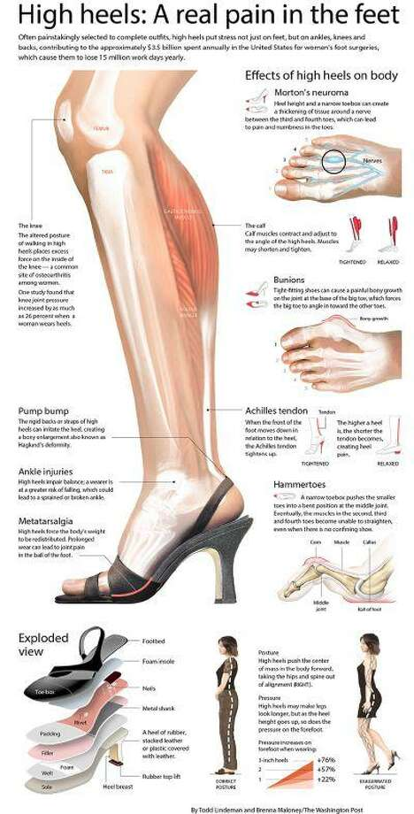 "High heels put stress not only on feet, but on ankles, knees and backs, contributing to the approximately $3.5 billion spent annually in the U.S. for women's foot surgeries. Sources: American Academy of Orthopaedic Surgeons, American Apparel & Footwear Association, American Orthopaedic Foot & Ankle Society, Mayo Clinic, Society of Chiropodists and Podiatrists, ""Women's Shoes and Knee Osteoarthritis,"" by D. Casey Kerrigan, Jennifer L. Lelas, Mark E. Karvosky, The Lancet 2001: 357: 1097-1098. (Washington Post graphic/Todd Lindeman and Brenna Maloney)"