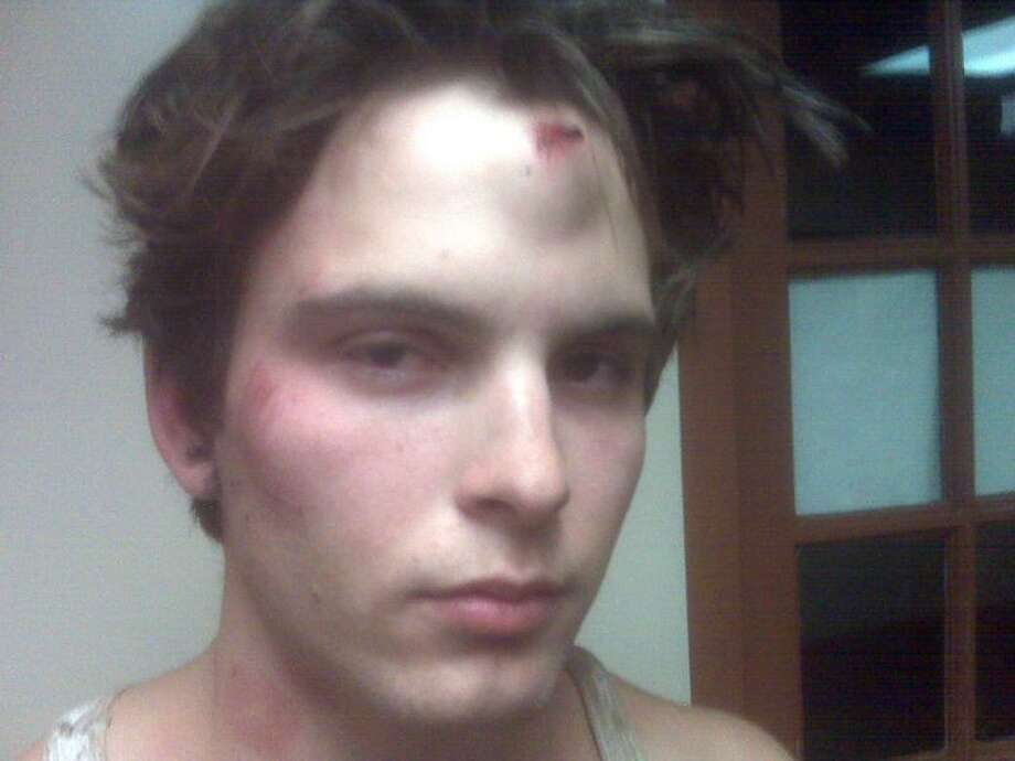 Michael Wood, a college student, is suing Hamden police in federal court for allegedly beating and using a Taser on him on Nov. 1, 2009 in Hamden when he was 18-years-old.