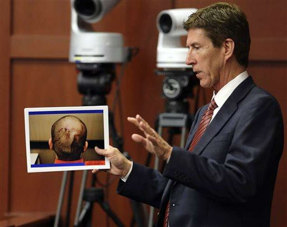 Defense attorney Mark O'Mara displays photos of George Zimmerman, taken the night of the shooting of Trayvon Martin, during cross examination of Jacksonville medical examiner Valerie Rao during Zimmerman's trial in Seminole circuit court, in Sanford, Fla., Tuesday, July  2, 2013. Zimmerman is charged with second-degree murder in the shooting death of Trayvon Martin. (AP Photo/Orlando Sentinel, Joe Burbank, Pool) Photo: AP / Pool Orlando Sentinel